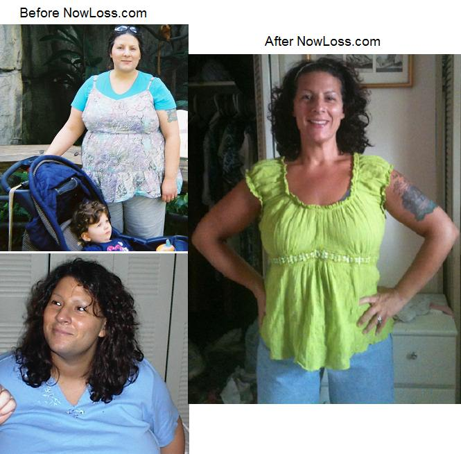 lost weight with pcos