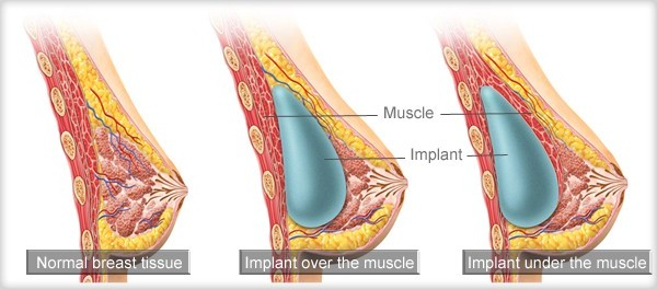 breast implants placement