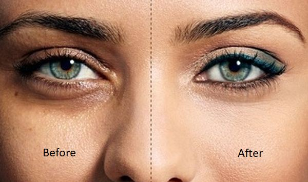 dark circles before after