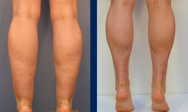 get rid of cankles