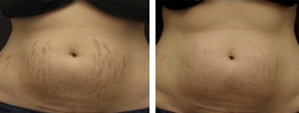 before after stretch marks