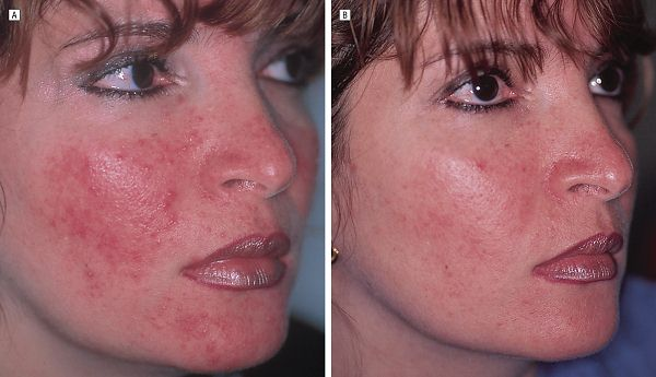 rosacea triggers treatments