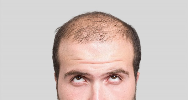 Testosterone hair loss